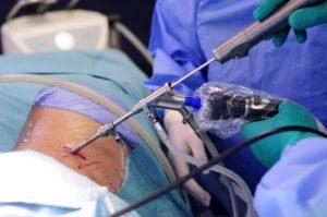 лечение эндоскопом