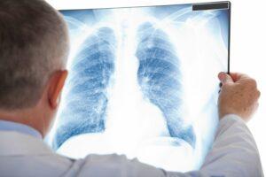 Диагностическая и лечебная бронхоскопия